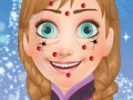 Anna Face Cleaning